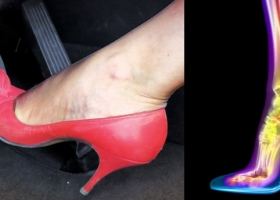 The High Heel is a Killer